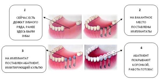Как сделать зубы белоснежными видео