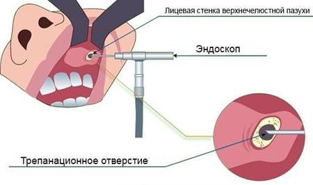 Лечение кисты верхнечелюстной пазухи